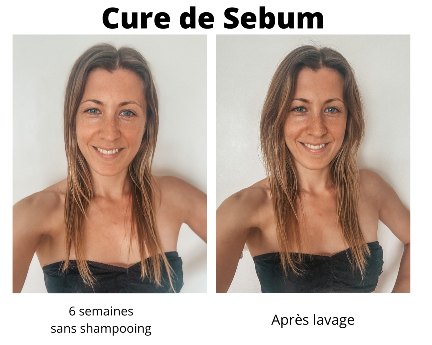 sébum cure